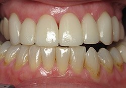patient #2 perfectly aligned teeth after dental treatment