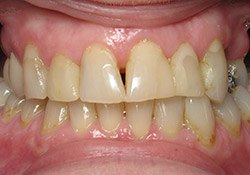 patient #2 uneven teeth before dental treatment