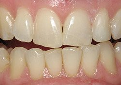 patient #5 with healthy teeth after dental treatment