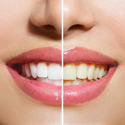 before and after tooth discoloration