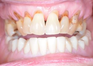 teeth with receded gums