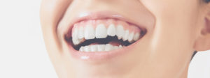 woman smiling healthy pink gums